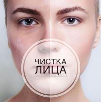 Ольга Алексеева Сочи чистка лица